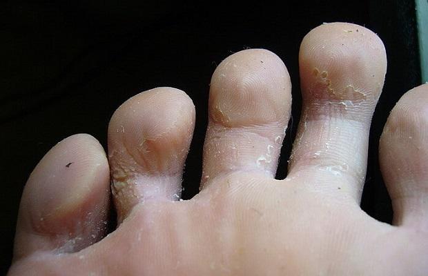 Почему облазит кожа на пальцах ног у взрослого: причины, лечение, фото