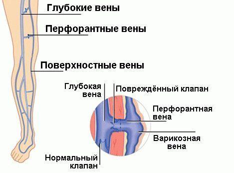 Бедренная вена: где находится, притоки, диаметр и проекция