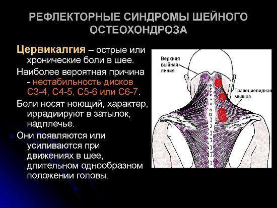 Невралгия шейного отдела позвоночника: симптомы и лечение, уколы и таблетки при невралгии шеи