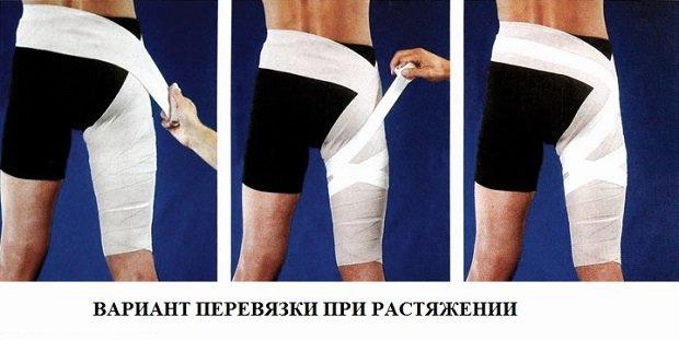 Надрыв и разрыв мышцы бедра: степени повреждения, симптомы, первая помощь, лечение и фото