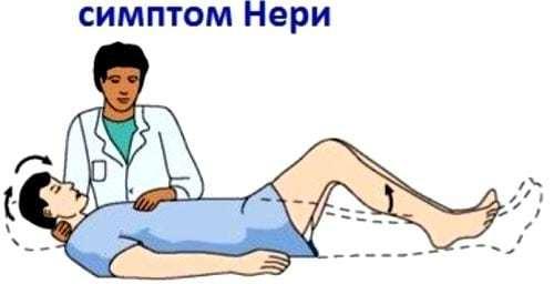 Корешковый синдром, его симптомы и лечение