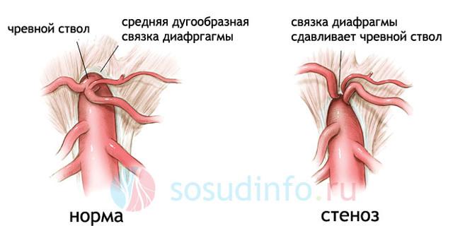 Патологии чревного ствола: симптомы, диагностика и лечение
