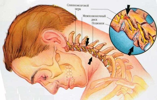 Пульсация в шее: причины пульсации сонных артерий, яремной вены слева, шейных вен с правой стороны