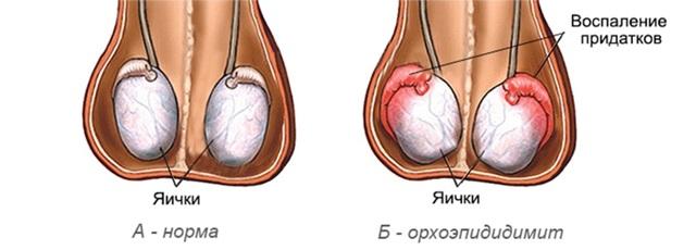 Орхоэпидидимит: что это такое, острый и хронический, симптомы и лечение