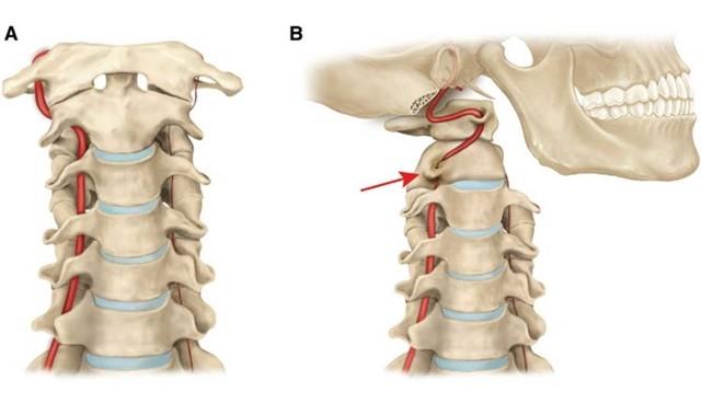 Синдром шейной артерии: симптомы и признаки нарушения кровотока, причины передавливания сосудов шеи и лечение защемления