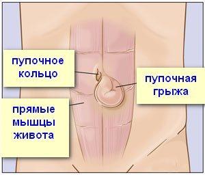 Бедренная грыжа у мужчин и женщин: симптомы, причины и лечение