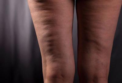Вмятина на бедре: причины, симптомы, лечение и фото