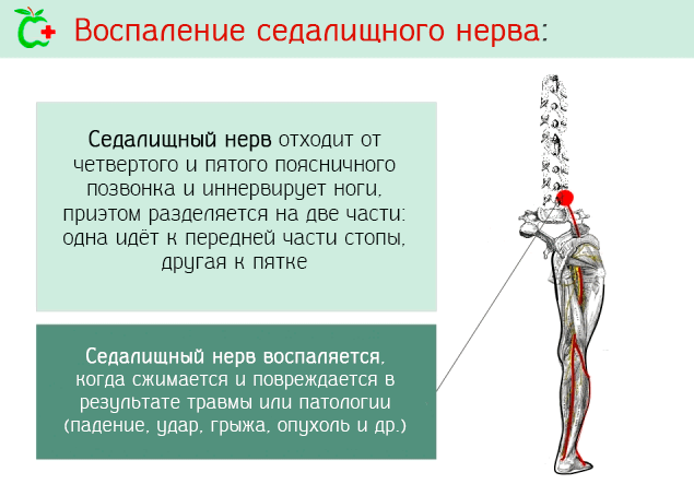 Лечение боли в копчике у мужчин и женщин: методы, последствия отказа от терапии и прогноз