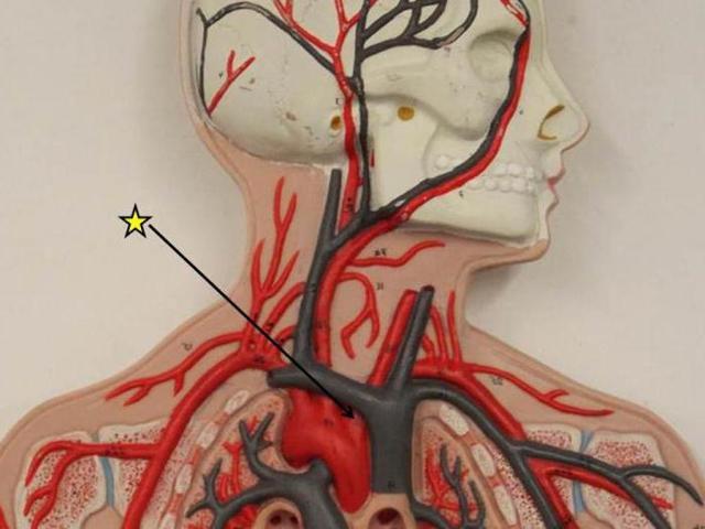 Плечеголовной ствол: анатомия и ветви, название на латыни