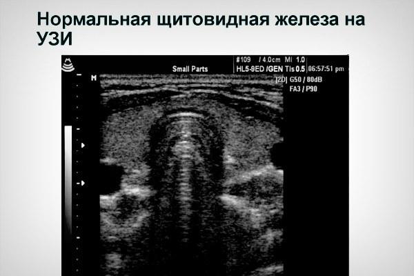 Объем щитовидной железы у детей: нормальные размеры по УЗИ, таблица показателей по возрасту