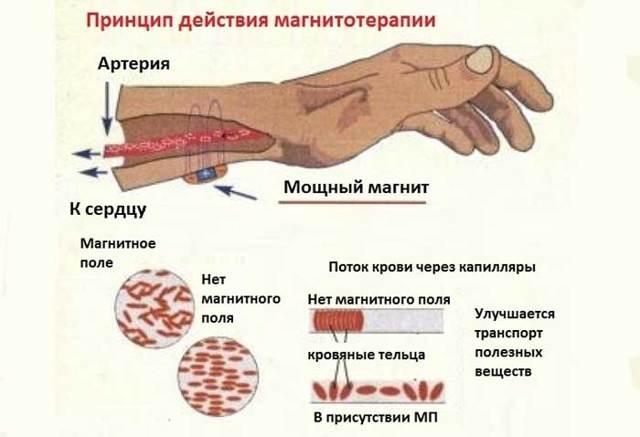 Магнитотерапия на позвоночник: что это такое, отзывы, польза, действие магнита, метод лечения, противопоказания