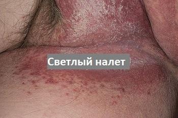 Чешется в интимном месте снаружи: член или мошонка, зуд в паху у мужчин, лечение