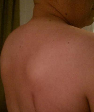 Шишка на спине под кожей: что это может быть, к какому врачу обратиться и как избавиться от уплотнения