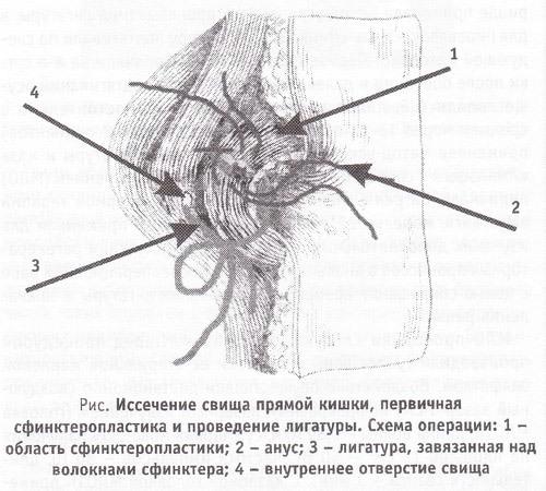 Ишиоректальный парапроктит: диагностика, методы лечения(операция)