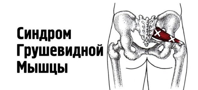 Массаж при синдроме грушевидной мышцы: польза и техника выполнения