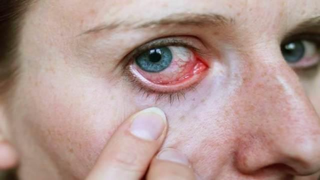 Аллергия на стиральный порошок у ребенка и взрослого