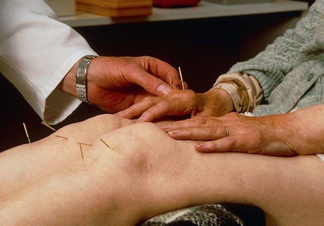 Обострение коксартроза: причины, лечение и профилактика