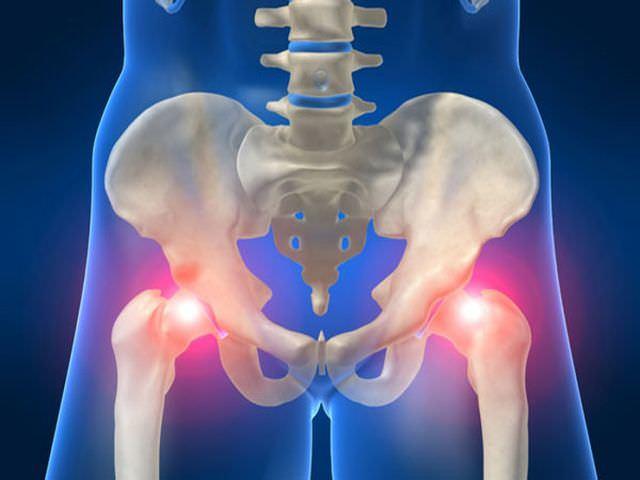 Лечение тазобедренного сустава в домашних условиях: ЛФК, растирания, массаж, вытяжение