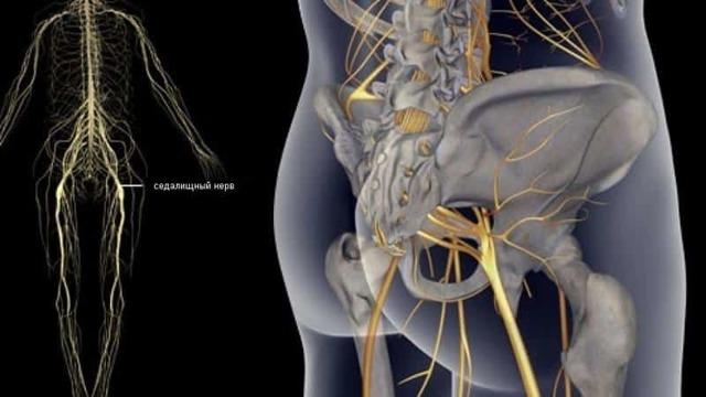 Операция при защемлении седалищного нерва: показания, виды, техника выполнения и отзывы