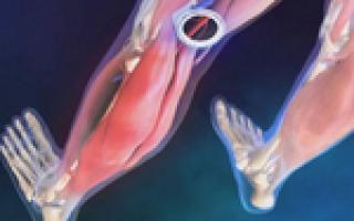 Окклюзия бедренной артерии: причины, диагностика, лечение и профилактика