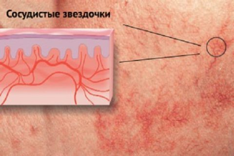 Болят вены на бедрах: причины, диагностика, лечение и прогноз