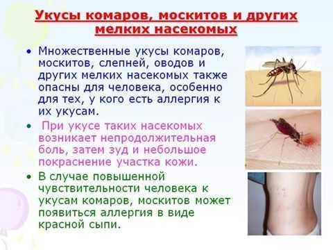 Аллергия на укусы комаров у детей и взрослых
