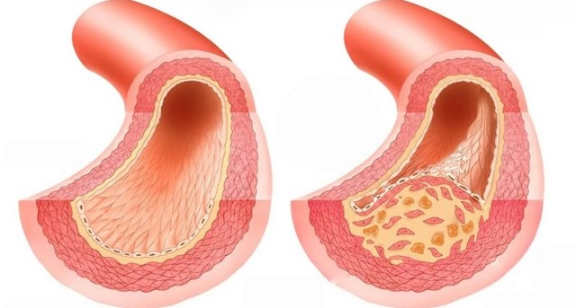 Мышцы тазового дна у мужчин и женщин: анатомия и половые различия в строении