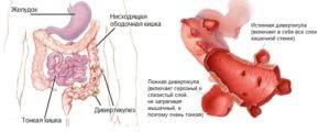 Лечение дивертикулеза кишечника народными средствами