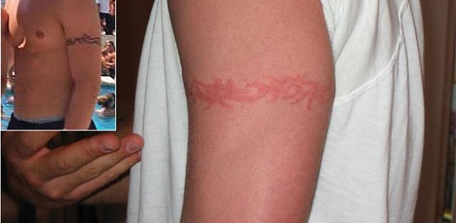 Аллергия на татуировку: пигмент, краску, хну