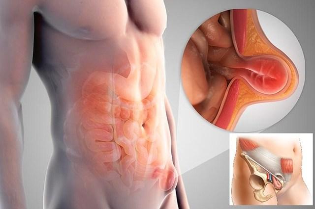 Тянет пах и почему промежность болит у мужчин при ходьбе: ноющая, резкая боль