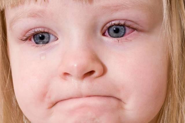 Аллергия на собак у детей и взрослых: признаки, лечение