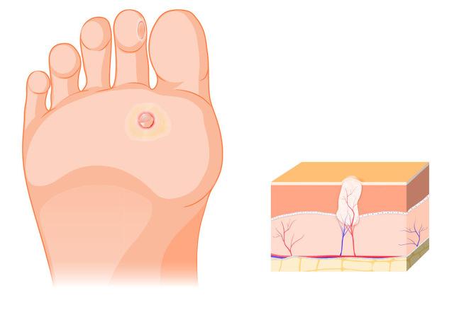 Как избавиться от бородавки на ступне ноги
