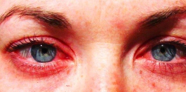 Аллергия на тушь для ресниц: симптомы, помощь, лечение