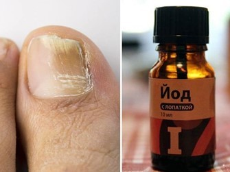 Как избавиться от грибка ногтей на ногах