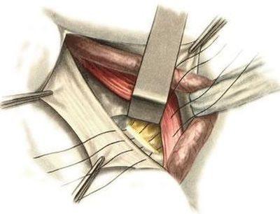 Техника операции при бедренных грыжах у мужчин и женщин: по Руджи Парлавеччо, по Бассини