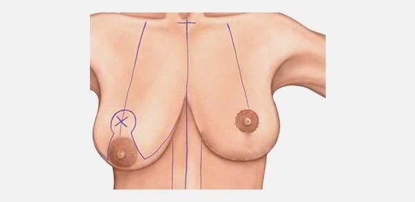 Почему у женщин одна молочная железа больше другой и что с этим делать