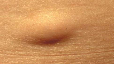 Уплотнение на бедре под кожей: что это, возможные причины, симптомы, лечение и фото шишки