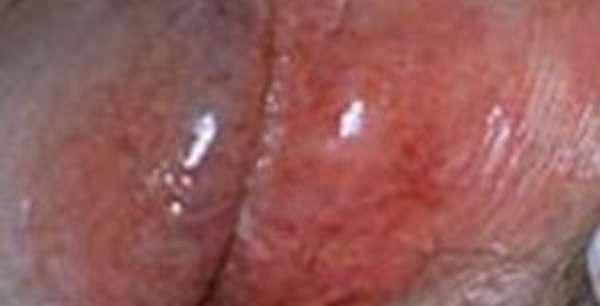 Урологические заболевания у мужчин: фото, симптомы и лечение инфекции