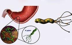 Дуоденит: причины, виды, симптомы, диагностика и методы лечения
