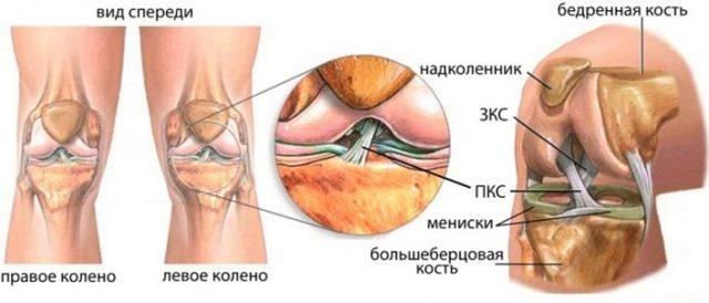 Лигаментоз тазобедренного сустава: причины, симптомы, лечение и профилактика