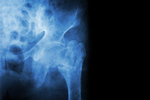 Реабилитация после перелома шейки бедра у пожилых людей: виды мероприятий, сроки восстановления и профилактика
