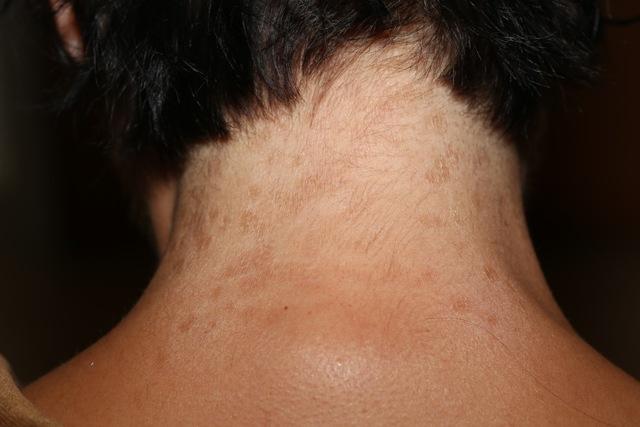 Папилломы на шее: причины появления у женщин и мужчин, лечение, методы удаления, мази и лекарственные средства от папилломо-вирусной инфекции