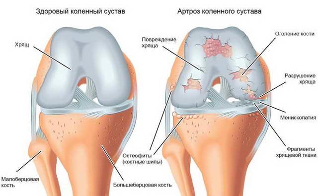 Массаж при остеохондрозе грудного отдела позвоночника