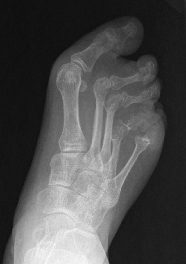 Болит подошва ноги около пальцев: как и чем лечить, что делать и чем это вызвано