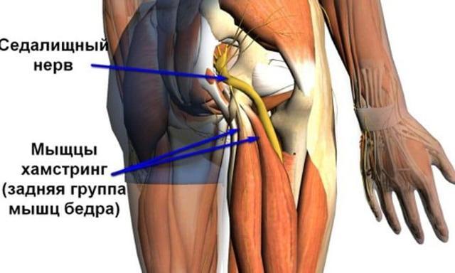 Лечение воспаления седалищного нерва: методы и особенности терапии при беременности