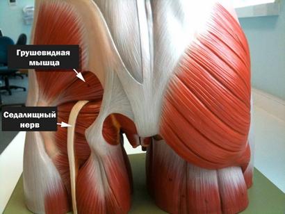 Защемление нерва в бедре: симптомы, лечение и профилактика
