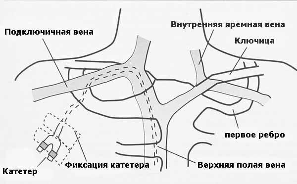 Катетеризация пупочной вены у новорожденных: показания, подготовка и техника выполнения