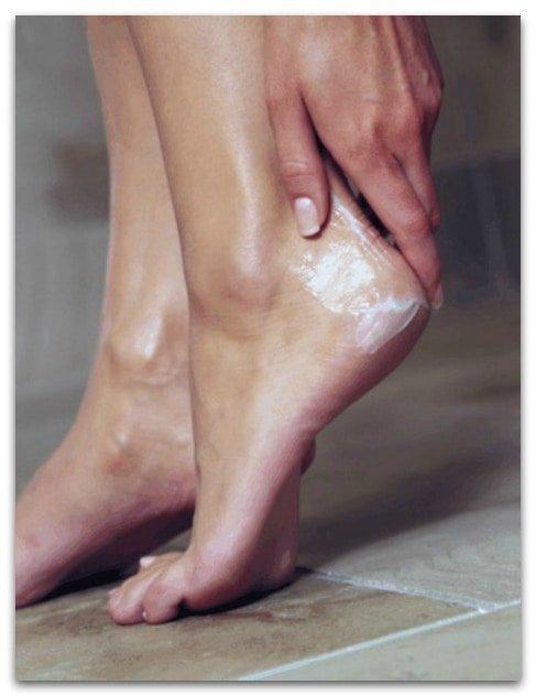 Как избавиться от натоптышей на ступнях ног: лечение и упражнения