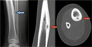Остеома бедренной кости: компактная, остеоидная