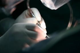 Лечение аневризмы брюшной аорты: основные методы и прогноз